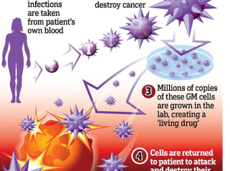 T -cell immunotherapy The living drug - could this be the end of cancer?